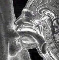 X ray deep throat image