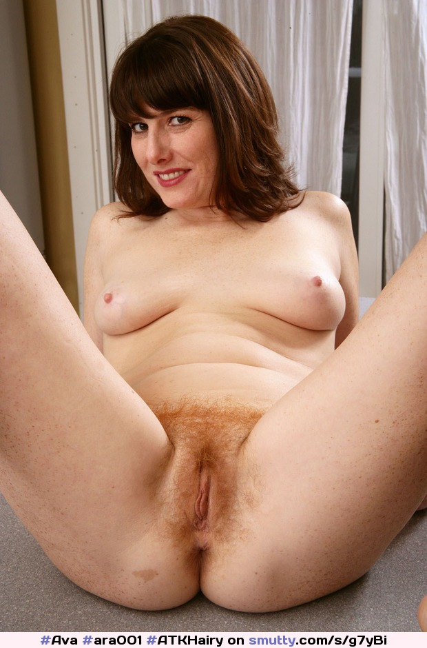 Can freckles hot mature