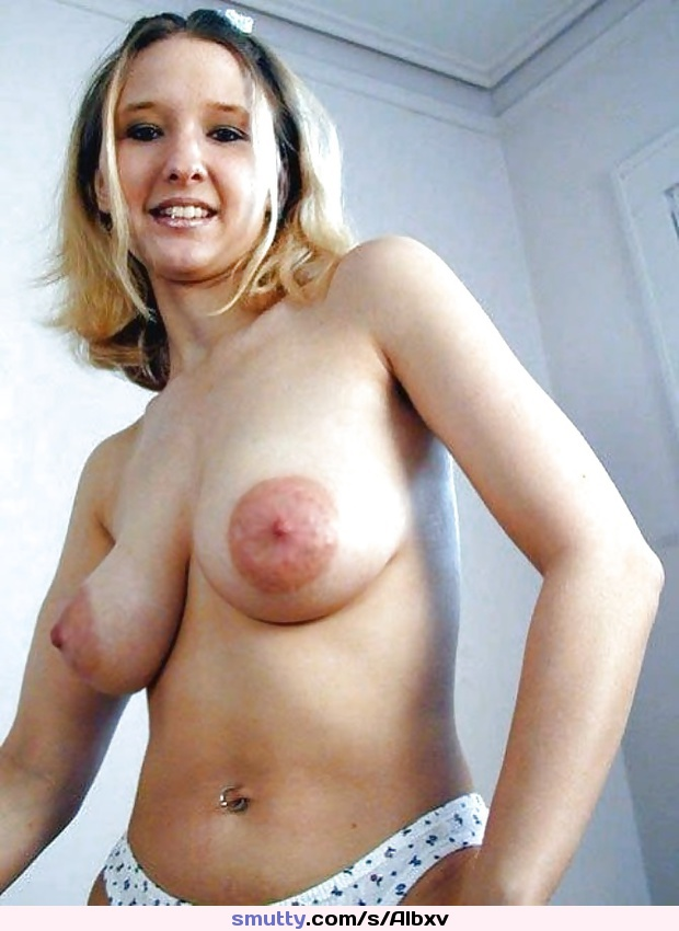 Large Puffy Areolas