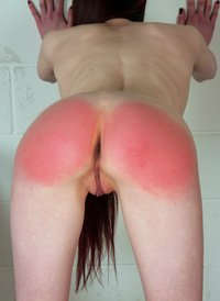 Pussy bruised by sex